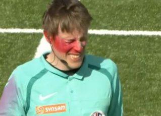 Árbitro é agredido om tinta no rosto. Foto: Reprodução de Internet