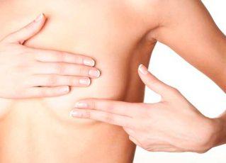Câncer de mama. Foto: Divulgação