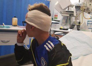 Menino autista é agredido e tem prego fincado ao crânio. Foto: Reprodução/Facebook