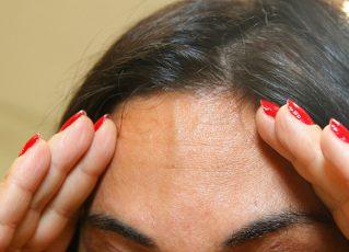 Mulher com dor de cabeça. Foto: Reprodução de Internet