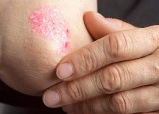 Alergia na pele. Foto: Reprodução de Internet