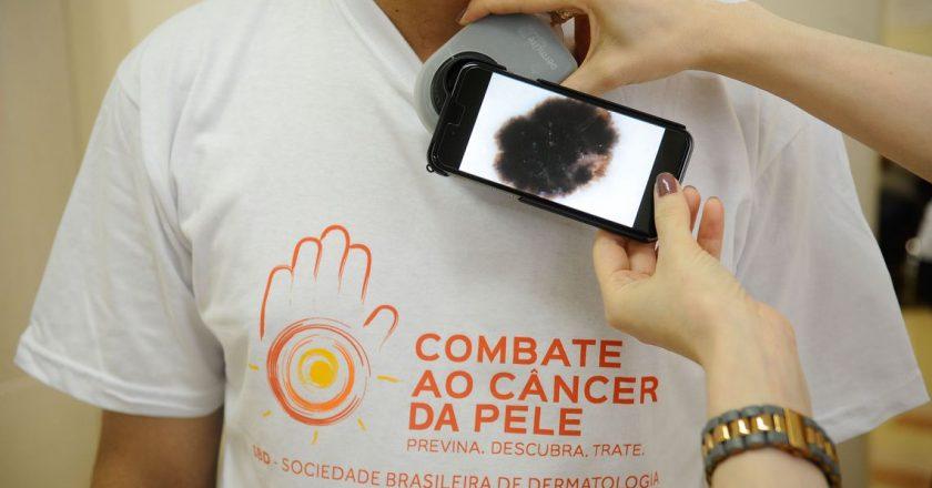 Pacientes são examinados durante campanha do Dia Nacional de Combate ao Câncer de Pele no Hospital Federal de Ipanema. Foto: Fernando Frazão/Agência Brasil