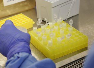 Diagnóstico laboratorial de casos suspeitos do novo coronavírus. Foto: Reprodução